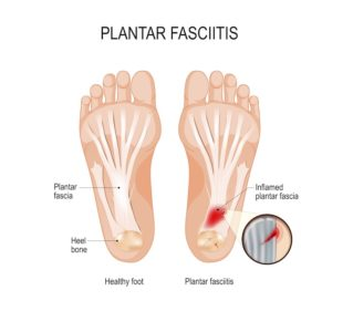 Illustration of Pain In The Soles Of The Feet When You Wake Up?