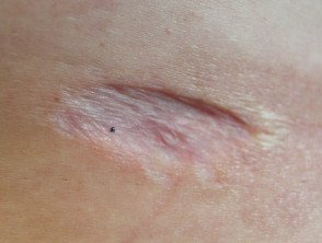 Illustration of Recurrence Of Surgery Scars?