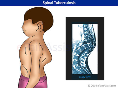 Illustration of Can The Scars Of Spinal TB On The Back Be Operated On?