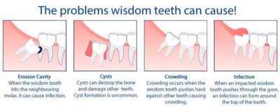 Illustration of What Are The Effects Of Impacted Teeth?