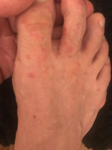 Illustration of SCABIES (SCABIES)?