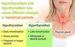 Illustration of Hyperthyroidism And Late Periods?