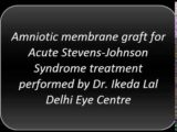 Eyes Closed By A White Membrane Due To Steven Johnson Syndrome?