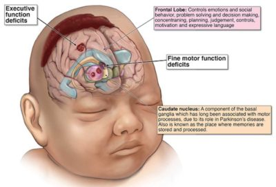 Illustration of Lack Of Oxygen In The Brain After Childbirth?