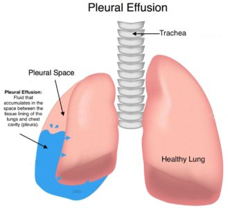 Illustration of Lung Infection In Children, How Is It Treated?