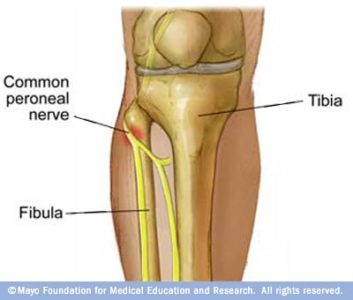 Illustration of Torn ACl Can Cause Paralysis?