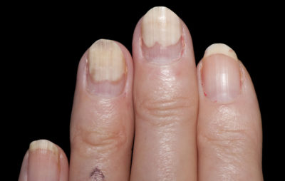 Illustration of Nails Come Off?