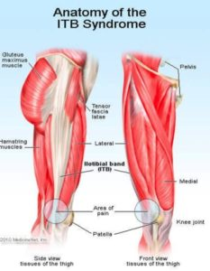 Illustration of Pain In The Buttocks To The Knees?