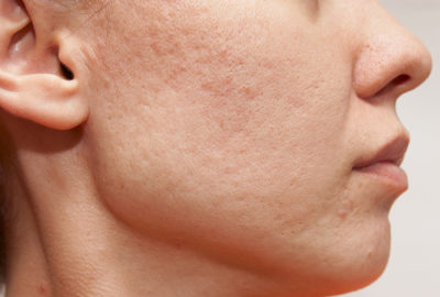 Illustration of Face Rubbing, Pimples, Heat And Itching After Using Collagen Cream.?