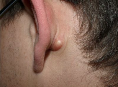 Illustration of What Is The Cause Of The Small Lump Behind The Right Ear? Is It Dangerous?
