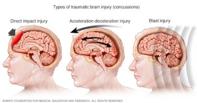 Illustration of Is It A Concussion?