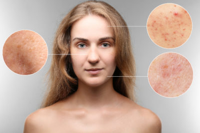 Illustration of Acne Or Not?