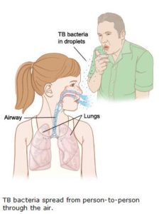 Illustration of What Is My Child's Cough With TB Glands?