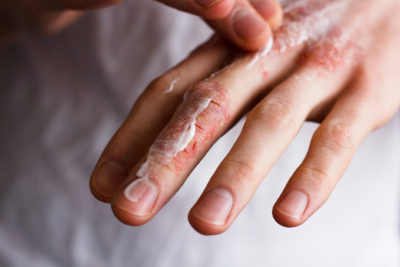 Illustration of Treatment Of Chipped Fingers Due To Burns?