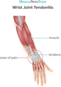Illustration of The Bone That Was Placed On The Pen Was Swollen Due To The Impact.?