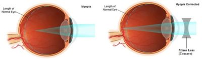 Illustration of Can Contact Lenses Cure Eye Minus?