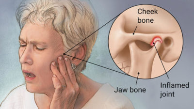 Illustration of Earache And Chewing Hurts.?
