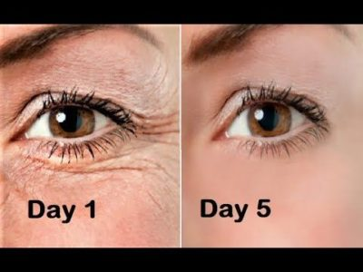 Illustration of How To Get Rid Of Wrinkles Under The Eyes?