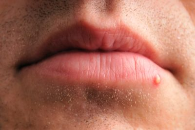 Illustration of A Large, Pus-filled Lump In The Corner Of The Lips And Cheeks?