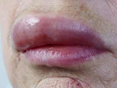 Illustration of The Lower Lip Feels Swollen And Feels Like Tingling?
