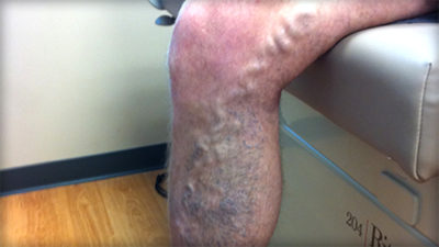 Illustration of Are All Dilated Veins Called Varicose Veins?