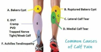 Illustration of Calf Muscles Pain / Pain?