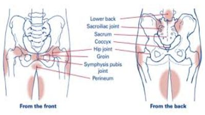 Illustration of Pain In The Groin During Early Pregnancy?
