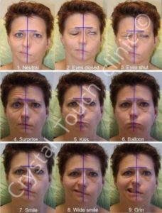 Illustration of What Is The Healing Stage For Bells Palsy?