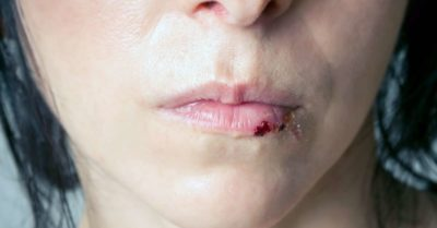 Illustration of Medication For Wound On The Right And Left Lip For Children Aged 5 Years?