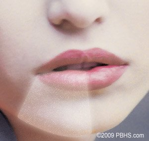 Illustration of Why Do Lips And Chin Tingle A Week After Impacted Teeth?