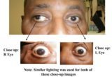 Size Abnormalities In The Eye?