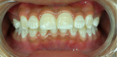 Illustration of How To Get Rid Of White Spots On Teeth?