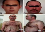 Cushing's Syndrome With Psoriasis, What Is The Effect?