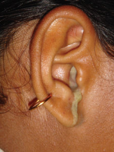 Illustration of Discharge In The Ear?