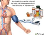 Can Hypertension Drugs Be Stopped?