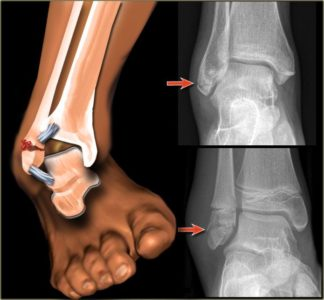 Illustration of Sprained, Dislocated Or Broken Ankle?