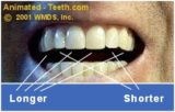 What Is The Solution For Perforated Front Teeth?