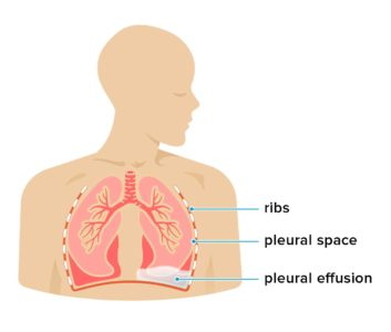 Illustration of Fluid In The Lungs?