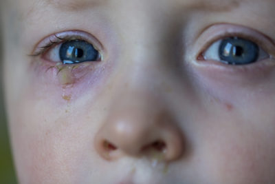 Illustration of The Child's Eyes Discharge?