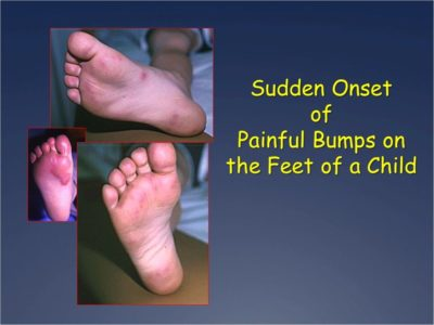 Illustration of Appearing Small Lumps Bruises On The Soles Of The Feet,?