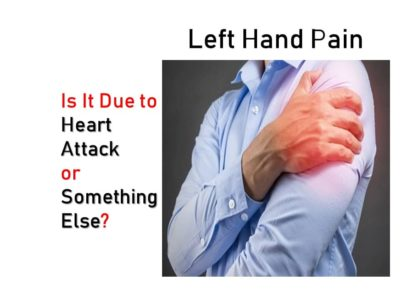Illustration of Pain In The Left Hand?