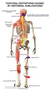 Illustration of Head And Back Pain?