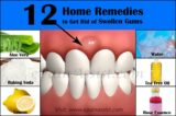What Is The Cure For Swollen Gums?