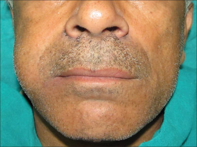 Illustration of Swelling On The Left And Right Cheeks?