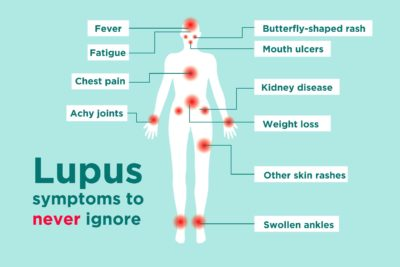 Illustration of Symptoms Of The Disease?