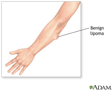 Illustration of Lump On The Arm Around The Elbow?