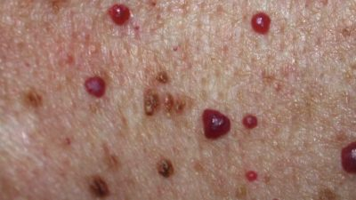 Illustration of How To Deal With Red Bumps On The Body That Spreads?