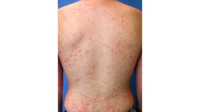 Illustration of Red Spots On The Back?