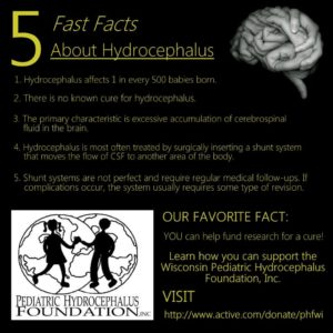 Illustration of About Hydrocephalus?