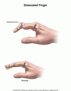 Illustration of Medicine So That The Fingers Can Be Moved?